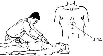 Библиотека портала. Денис Богуш. КАППО. Японская техника реанимации в практике боевых искусств. Часть 2.